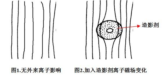 造影剂在磁共振成像的原理及应用
